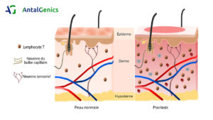 model peau psoriasis